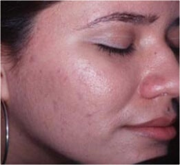 Acne Therapy after