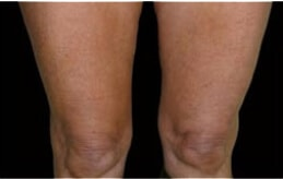 Cellulite Treatment after