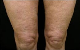 Cellulite Treatment before
