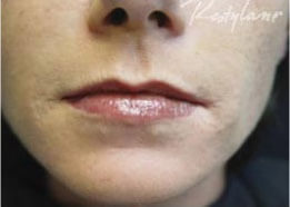 Dermal Fillers after