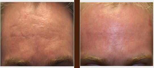 Acne Therapy before and after