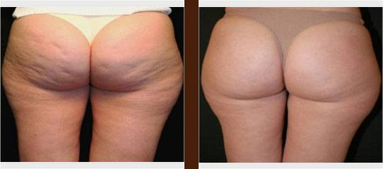 Cellulite Treatment before and after