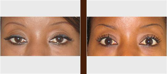 Eye Treatment before and after