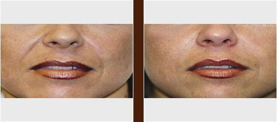 Dermal Fillers before and after
