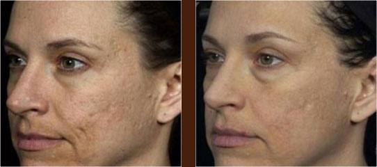 Scar Treatment before and after