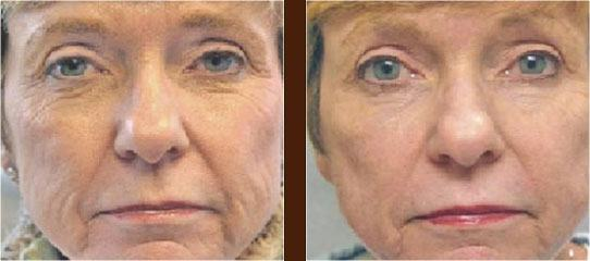 Skin Tightening before and after