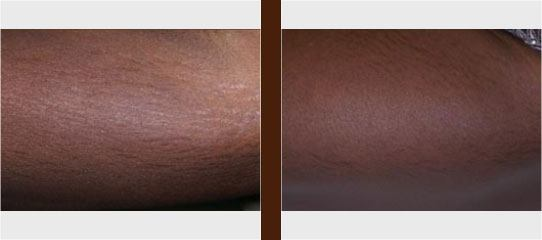 Stretch Mark before and after