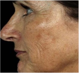 Skin Rejuvenation before