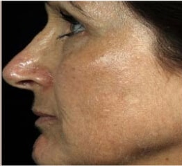 Skin Rejuvenation after